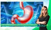 Vive Más: Enfermedades gastrointestinales